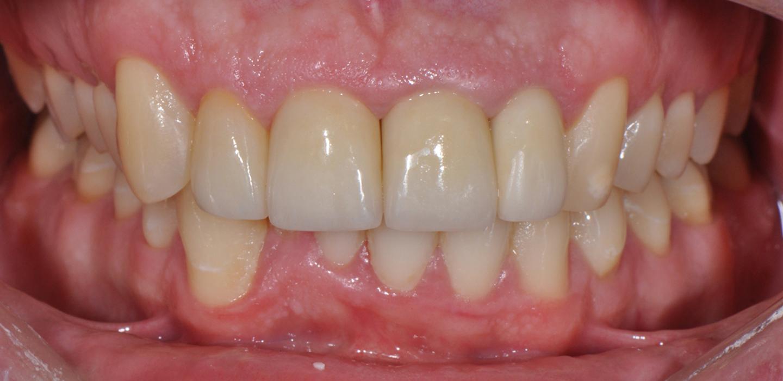 Galeria przypadków stomatologicznych