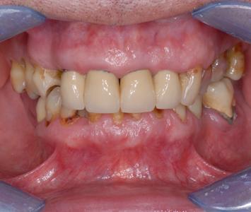 zęby w zgryzie przed terapią