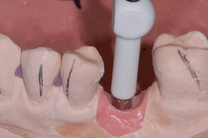 Ryc. 14_Przykręcenie skan lokatora do repliki implantu Ankylos C/X w modelu roboczym.