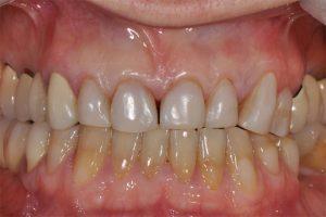 Obraz kliniczny zębów w zgryzie, widok frontalny po umieszczeniu licówek