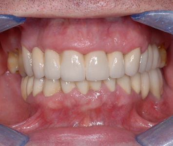 zęby w zgryzie
