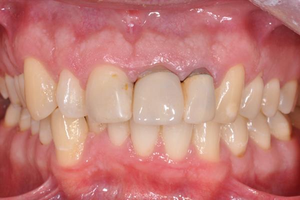 stan wyjściowy - zęby w zgryzie przed terapią