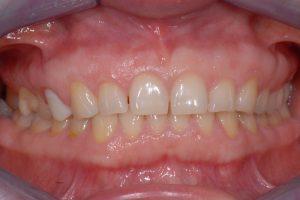 Obraz kliniczny zębów w zgryzie, widok frontalny przed terapią